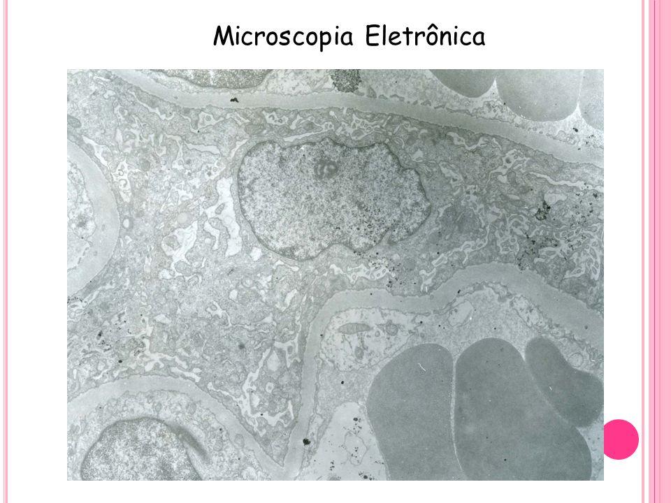 Microscopia Eletrônica