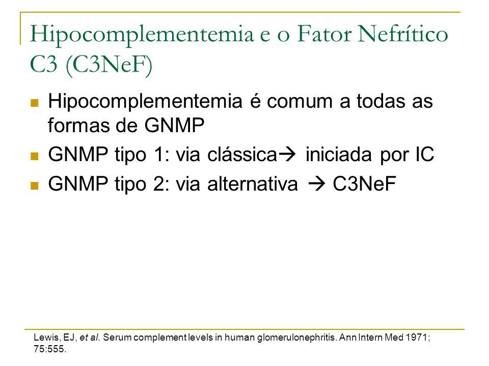 Hipocomplementemia e o Fator Nefrítico C3 (C3NeF)