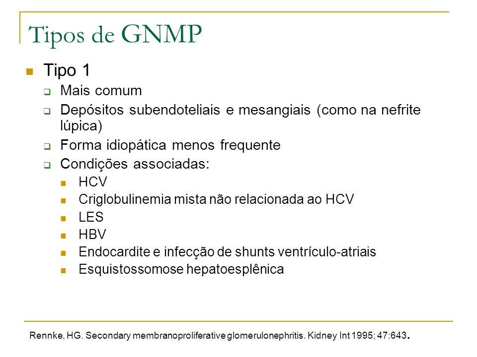 Tipos de GNMP Tipo 1 Mais comum