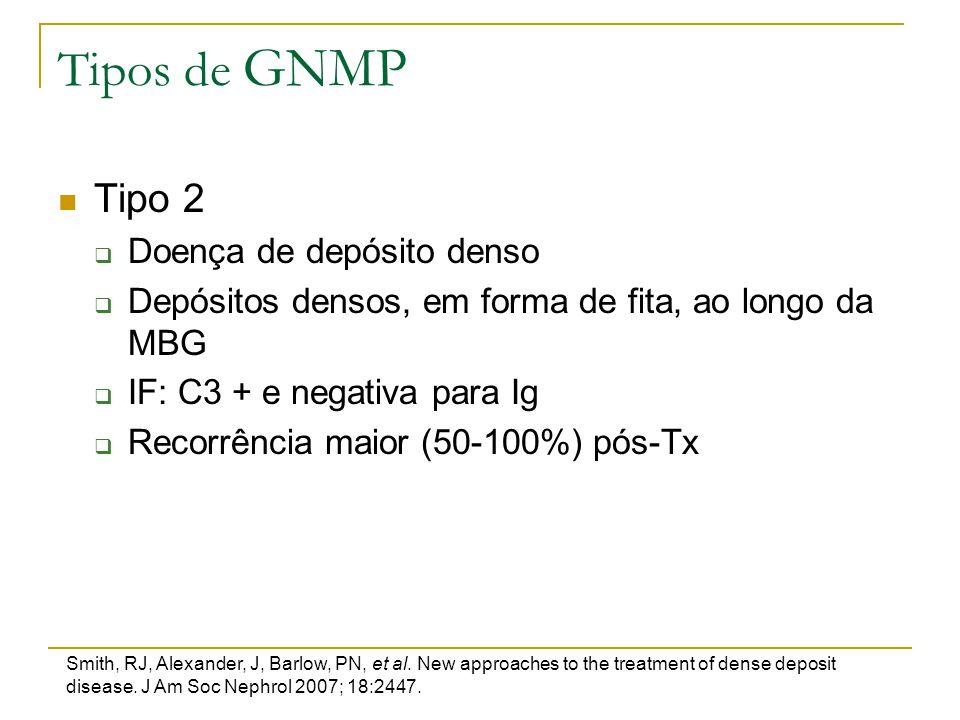 Tipos de GNMP Tipo 2 Doença de depósito denso