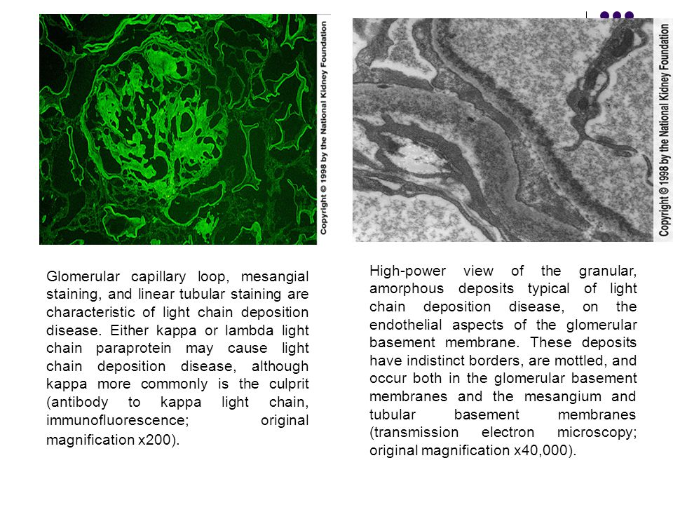 High-power view of the granular, amorphous deposits typical of light chain deposition disease, on the endothelial aspects of the glomerular basement membrane. These deposits have indistinct borders, are mottled, and occur both in the glomerular basement membranes and the mesangium and tubular basement membranes (transmission electron microscopy; original magnification x40,000).