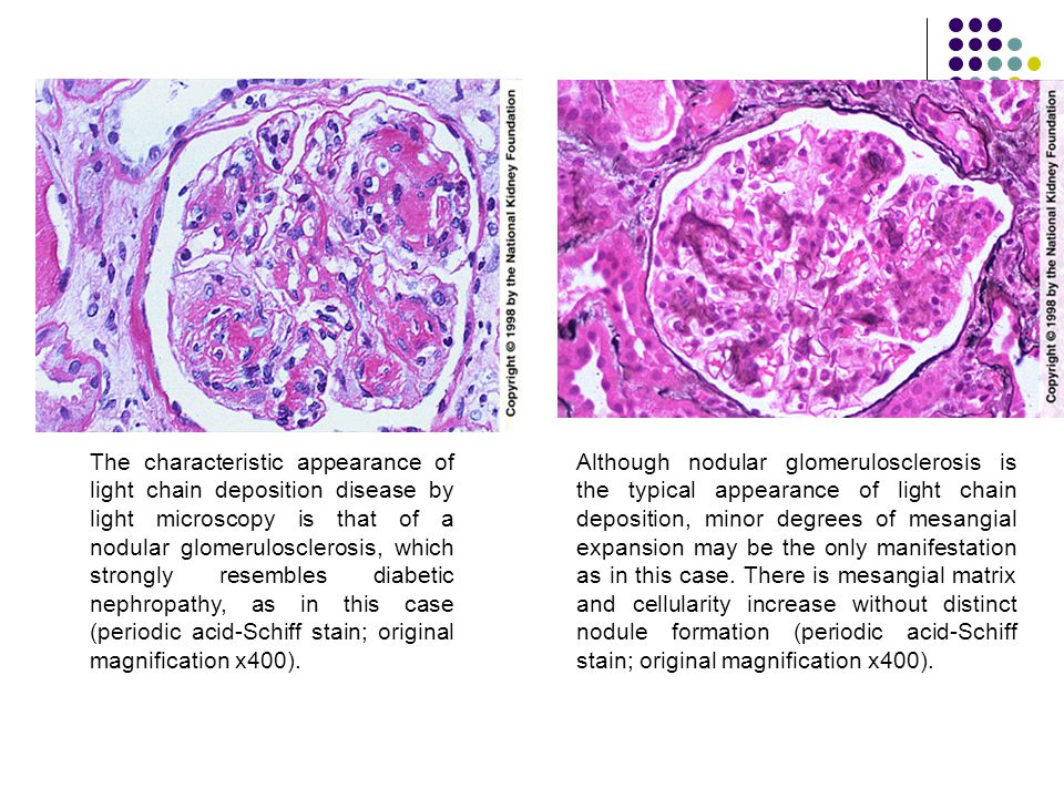 The characteristic appearance of light chain deposition disease by light microscopy is that of a nodular glomerulosclerosis, which strongly resembles diabetic nephropathy, as in this case (periodic acid-Schiff stain; original magnification x400).