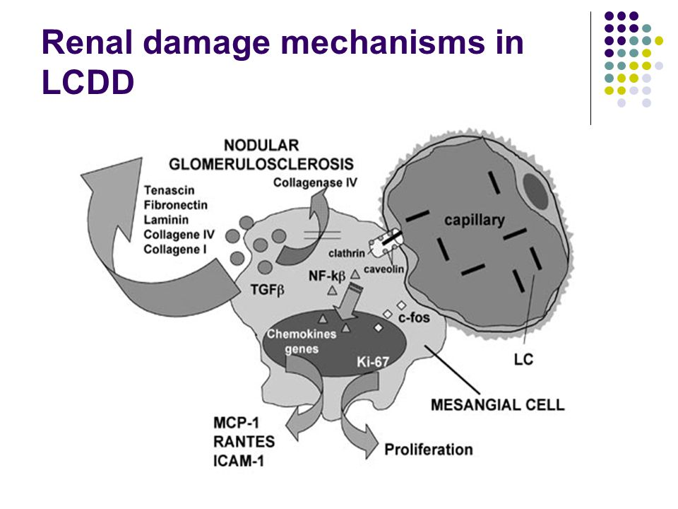 Renal damage mechanisms in LCDD