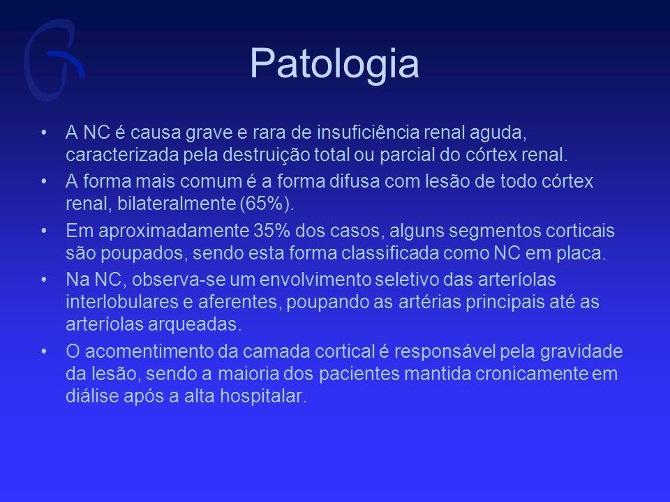 Patologia A NC é causa grave e rara de insuficiência renal aguda, caracterizada pela destruição total ou parcial do córtex renal.