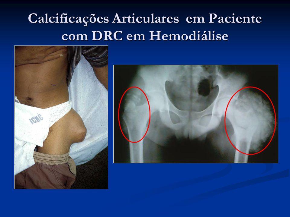 Calcificações Articulares em Paciente com DRC em Hemodiálise