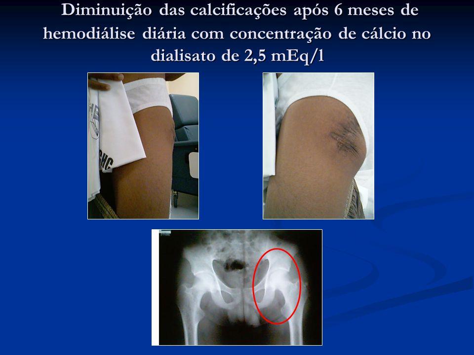 Diminuição das calcificações após 6 meses de hemodiálise diária com concentração de cálcio no dialisato de 2,5 mEq/l