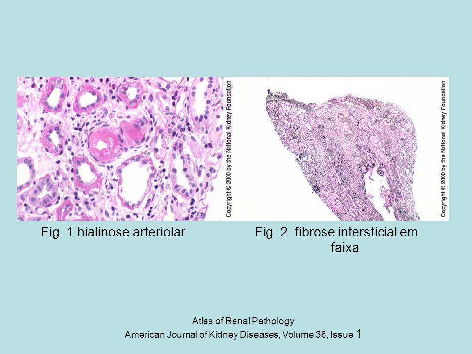 Fig. 1 hialinose arteriolar Fig. 2 fibrose intersticial em faixa