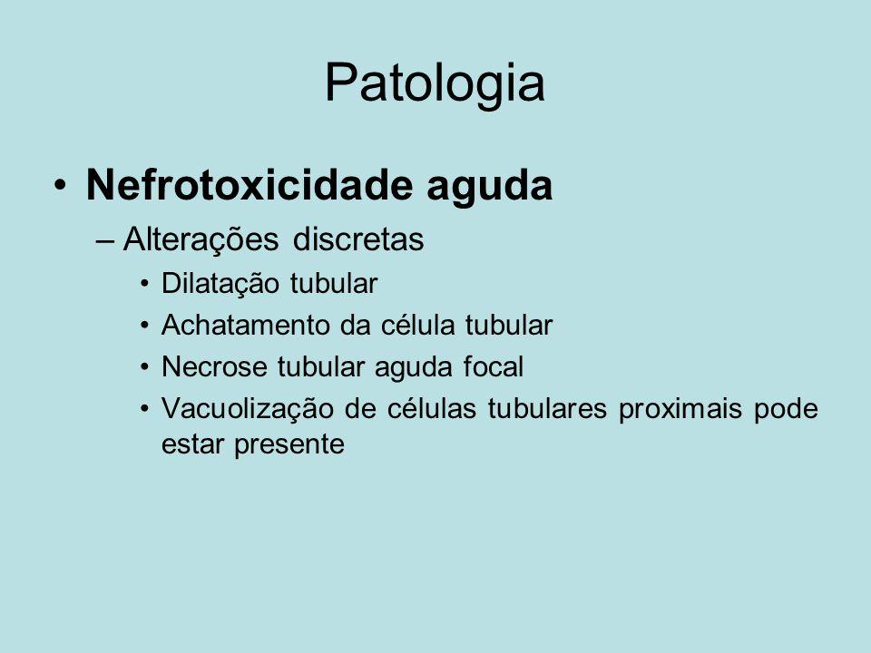 Patologia Nefrotoxicidade aguda Alterações discretas Dilatação tubular