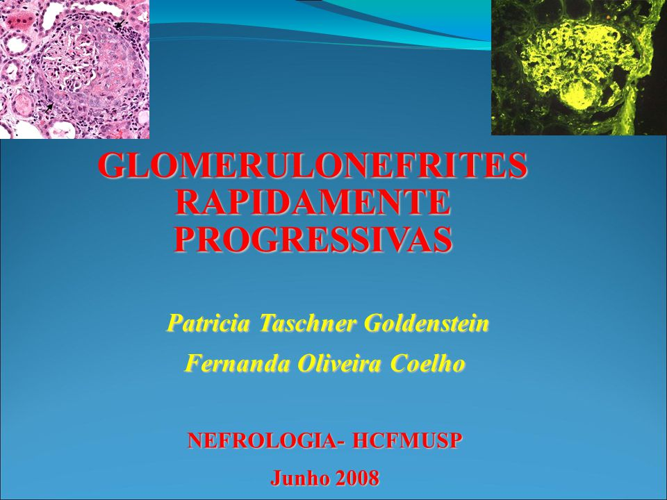 GLOMERULONEFRITES RAPIDAMENTE PROGRESSIVAS