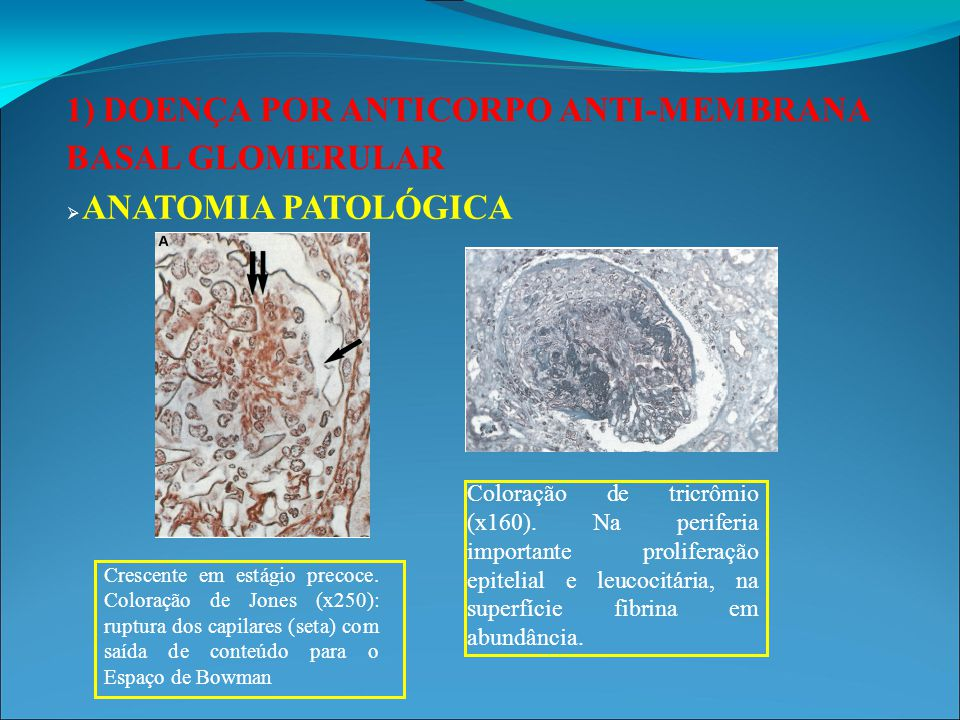 1) DOENÇA POR ANTICORPO ANTI-MEMBRANA BASAL GLOMERULAR