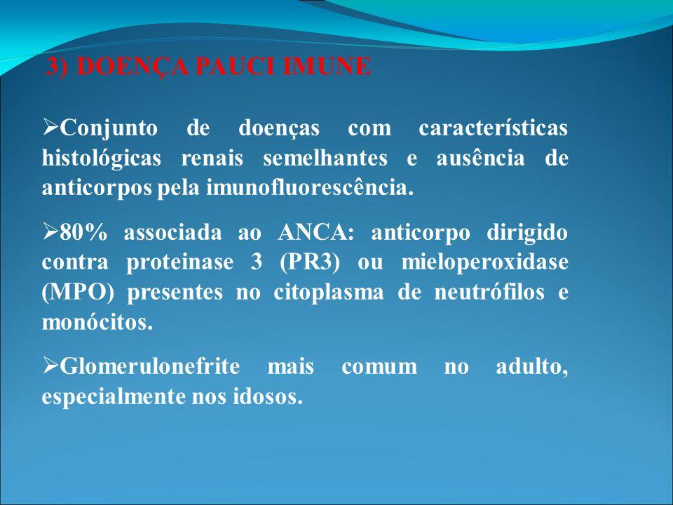 3) DOENÇA PAUCI IMUNE Conjunto de doenças com características histológicas renais semelhantes e ausência de anticorpos pela imunofluorescência.