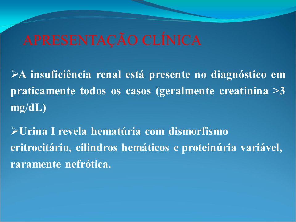 APRESENTAÇÃO CLÍNICA A insuficiência renal está presente no diagnóstico em praticamente todos os casos (geralmente creatinina >3 mg/dL)