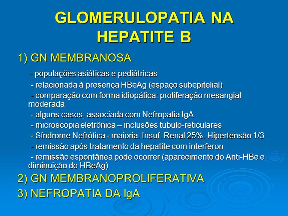 GLOMERULOPATIA NA HEPATITE B