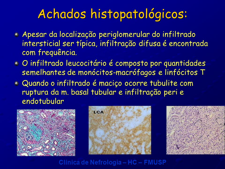 Achados histopatológicos: