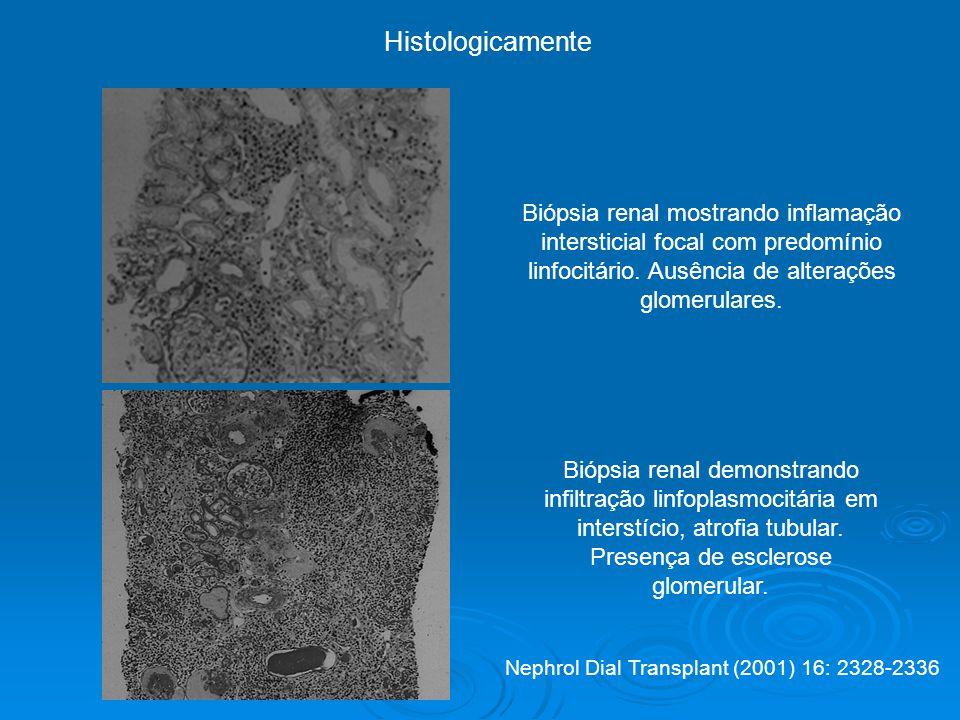 Histologicamente Biópsia renal mostrando inflamação intersticial focal com predomínio linfocitário. Ausência de alterações glomerulares.