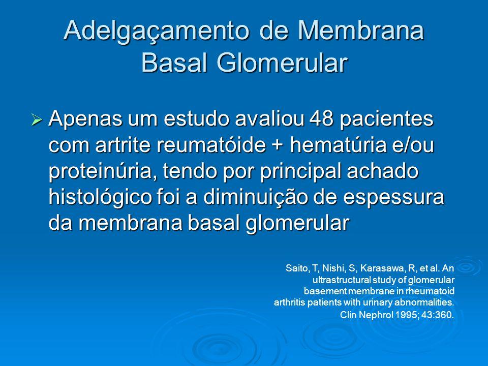 Adelgaçamento de Membrana Basal Glomerular