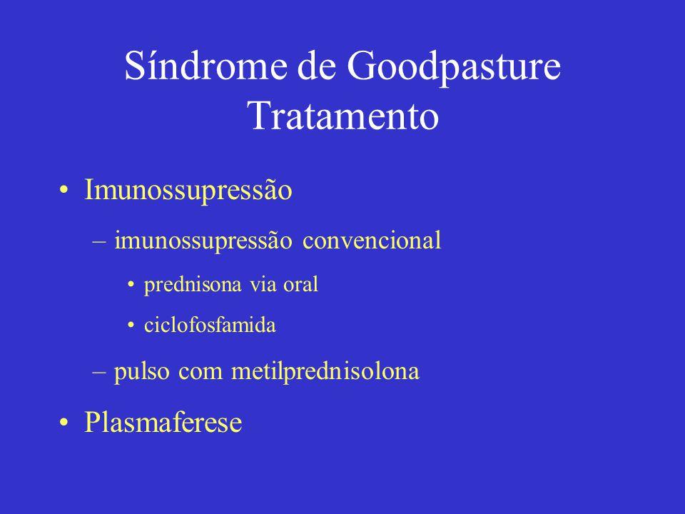 Síndrome de Goodpasture Tratamento