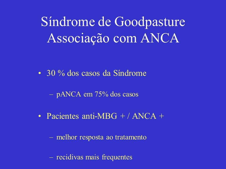 Síndrome de Goodpasture Associação com ANCA