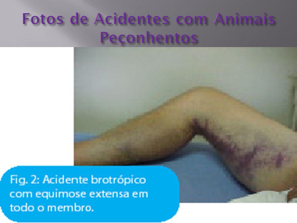 Fotos de Acidentes com Animais Peçonhentos