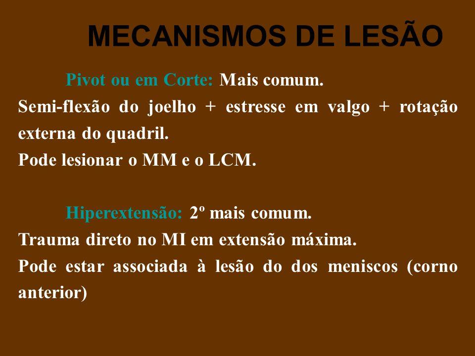 MECANISMOS DE LESÃO Pivot ou em Corte: Mais comum.