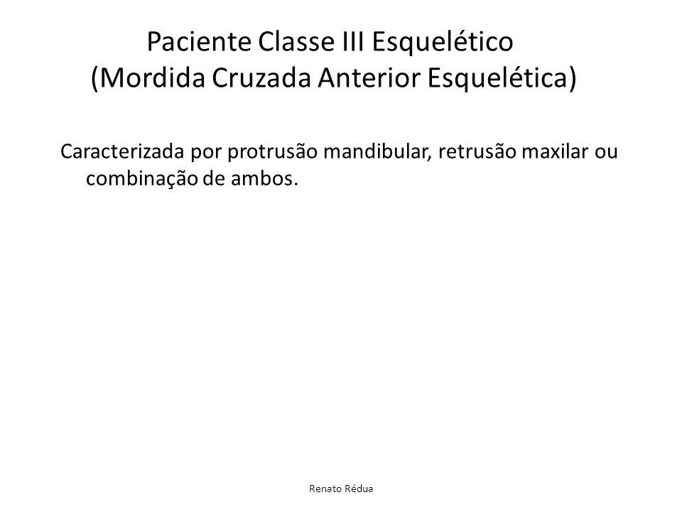 Paciente Classe III Esquelético (Mordida Cruzada Anterior Esquelética)