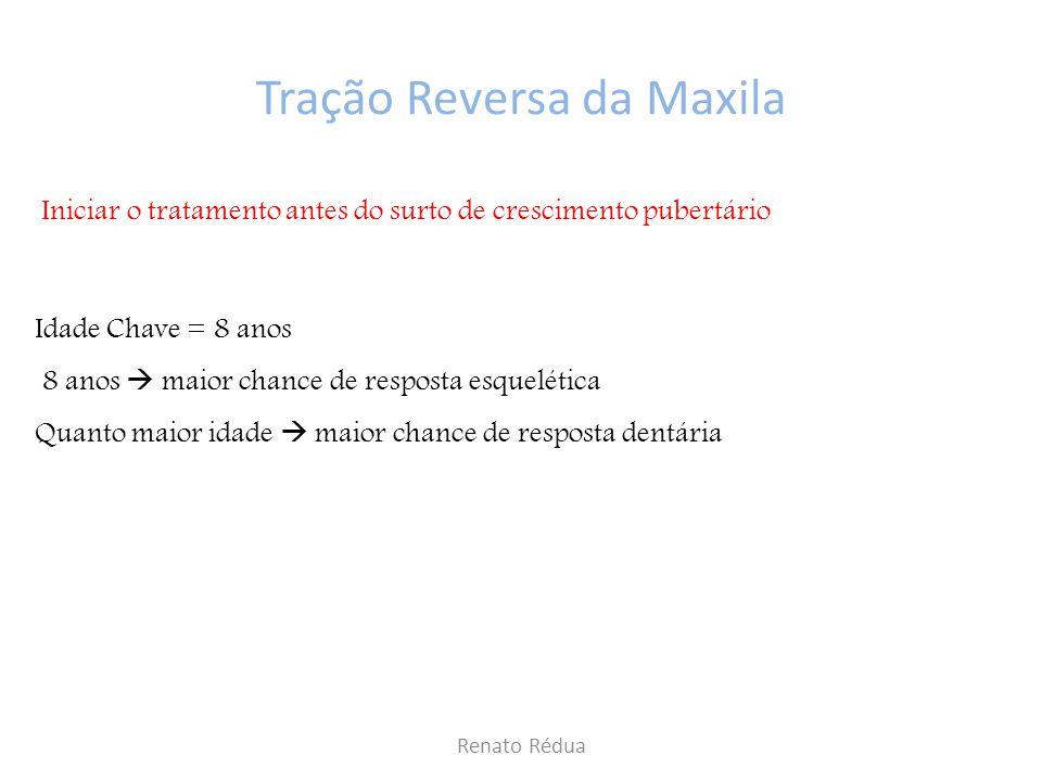 Tração Reversa da Maxila
