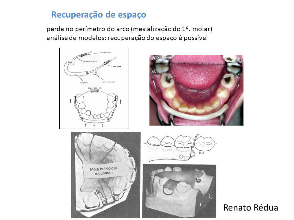 Recuperação de espaço Renato Rédua