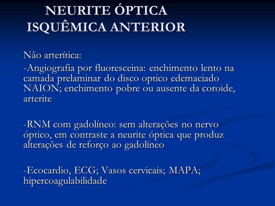 NEURITE ÓPTICA ISQUÊMICA ANTERIOR