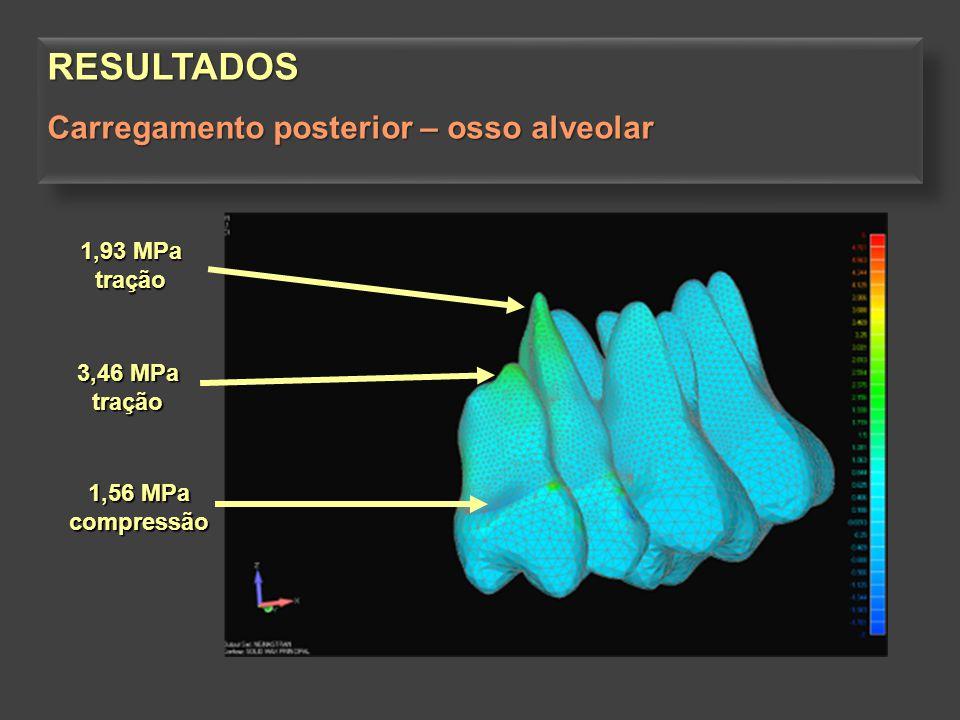 RESULTADOS Carregamento posterior – osso alveolar 1,93 MPa tração
