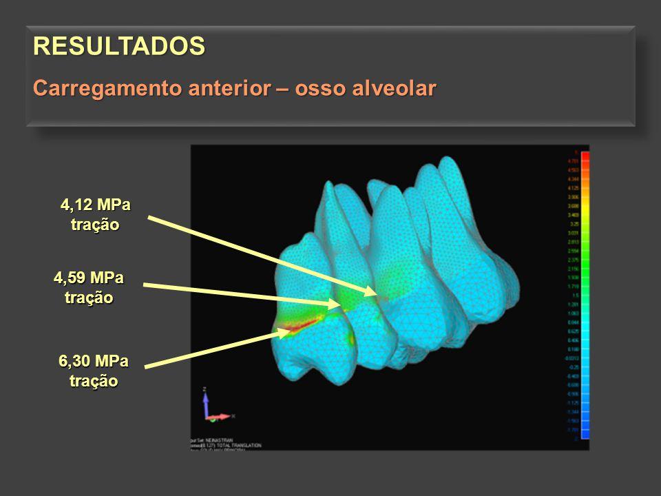 RESULTADOS Carregamento anterior – osso alveolar 4,12 MPa tração