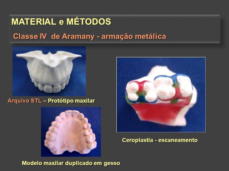 MATERIAL e MÉTODOS Classe IV de Aramany - armação metálica