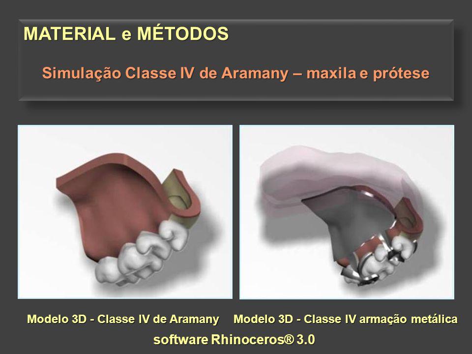 Simulação Classe IV de Aramany – maxila e prótese