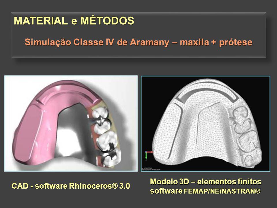 Simulação Classe IV de Aramany – maxila + prótese