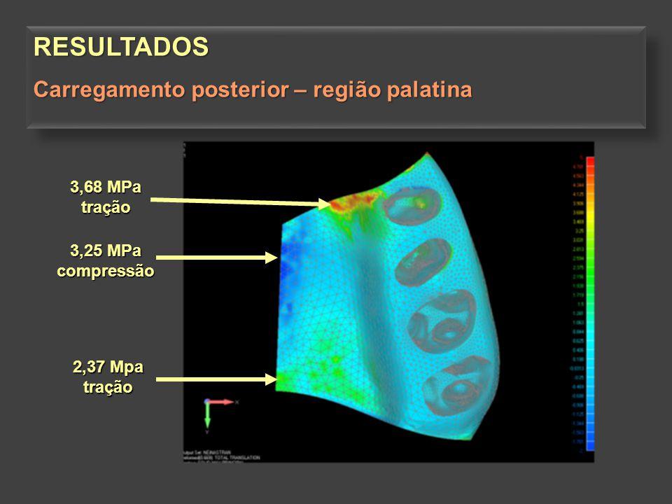RESULTADOS Carregamento posterior – região palatina 3,68 MPa tração