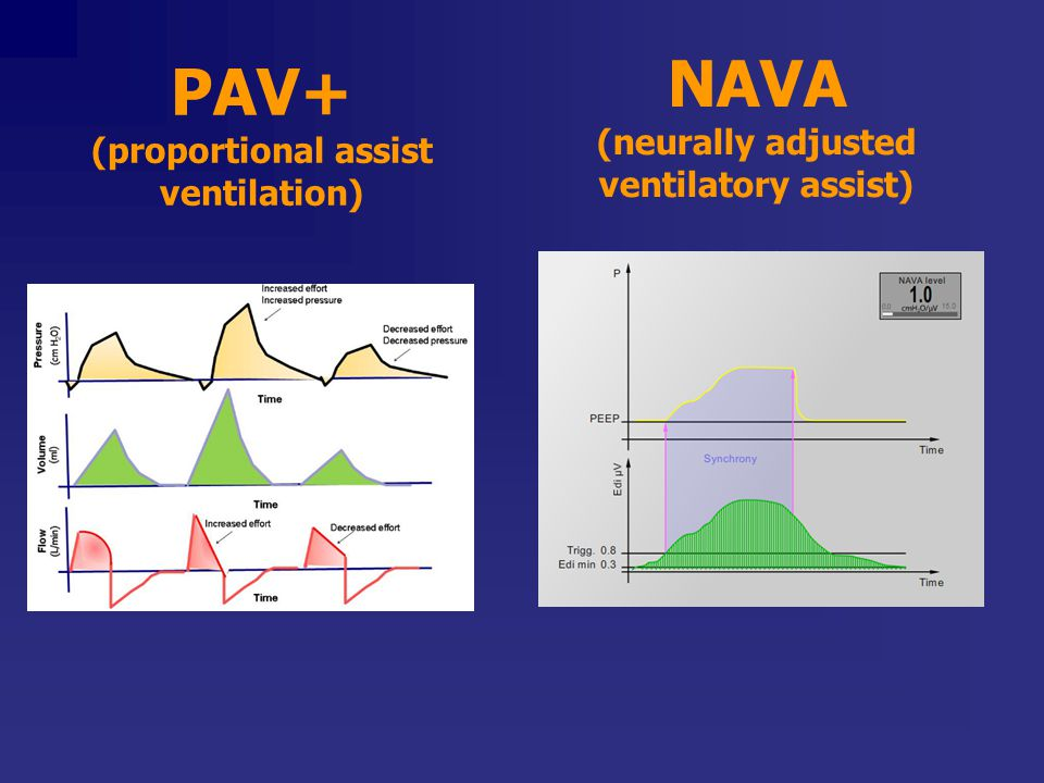 PAV+ (proportional assist ventilation)