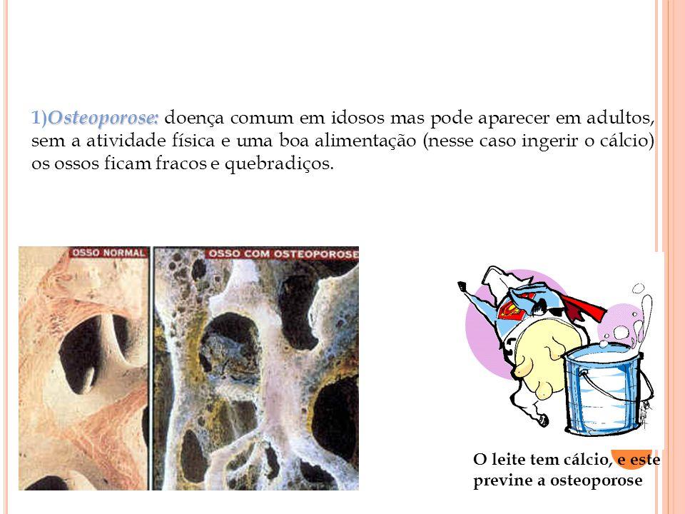 1)Osteoporose: doença comum em idosos mas pode aparecer em adultos, sem a atividade física e uma boa alimentação (nesse caso ingerir o cálcio) os ossos ficam fracos e quebradiços.