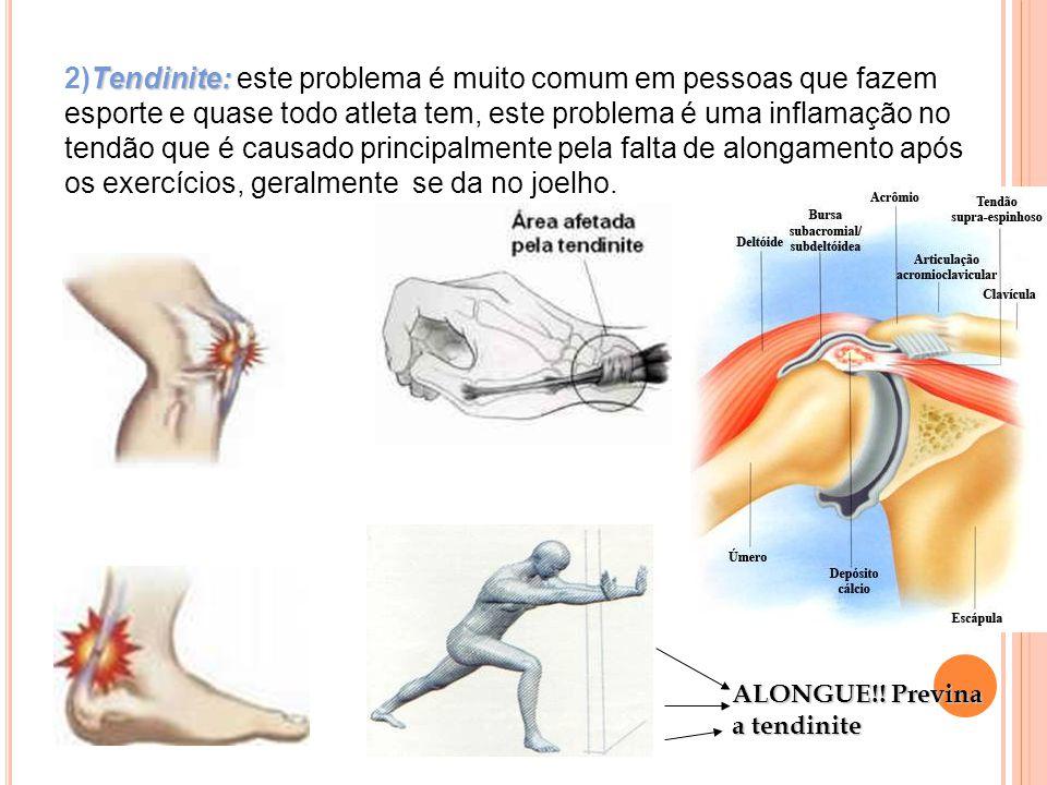 2)Tendinite: este problema é muito comum em pessoas que fazem esporte e quase todo atleta tem, este problema é uma inflamação no tendão que é causado principalmente pela falta de alongamento após os exercícios, geralmente se da no joelho.