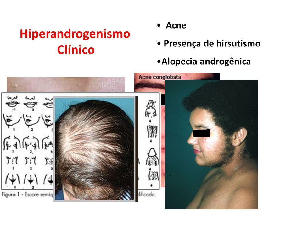 Hiperandrogenismo Clínico