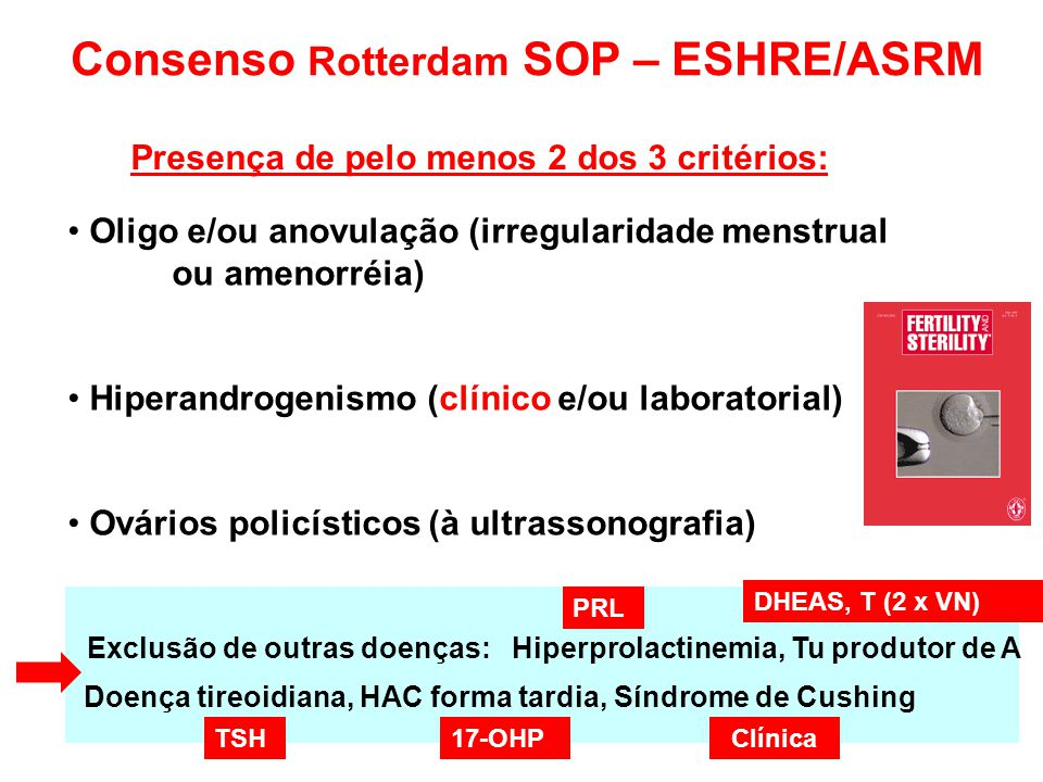 Consenso Rotterdam SOP – ESHRE/ASRM
