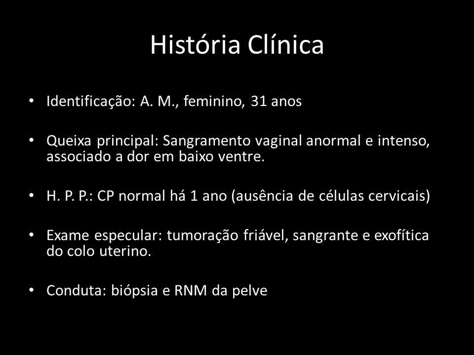História Clínica Identificação: A. M., feminino, 31 anos