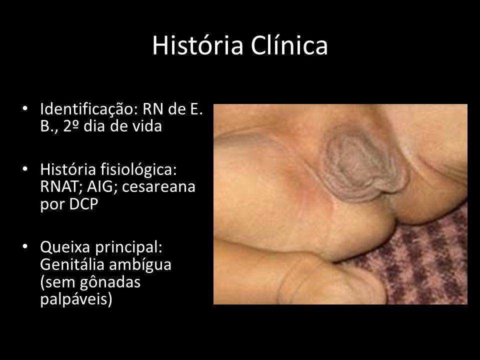 História Clínica Identificação: RN de E. B., 2º dia de vida