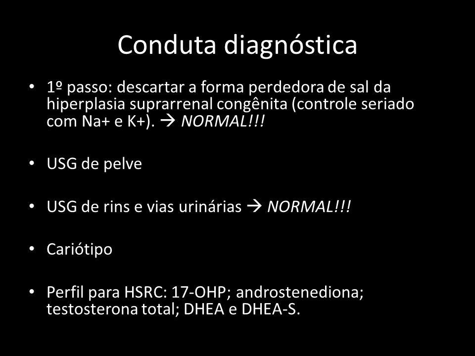 Conduta diagnóstica 1º passo: descartar a forma perdedora de sal da hiperplasia suprarrenal congênita (controle seriado com Na+ e K+).  NORMAL!!!