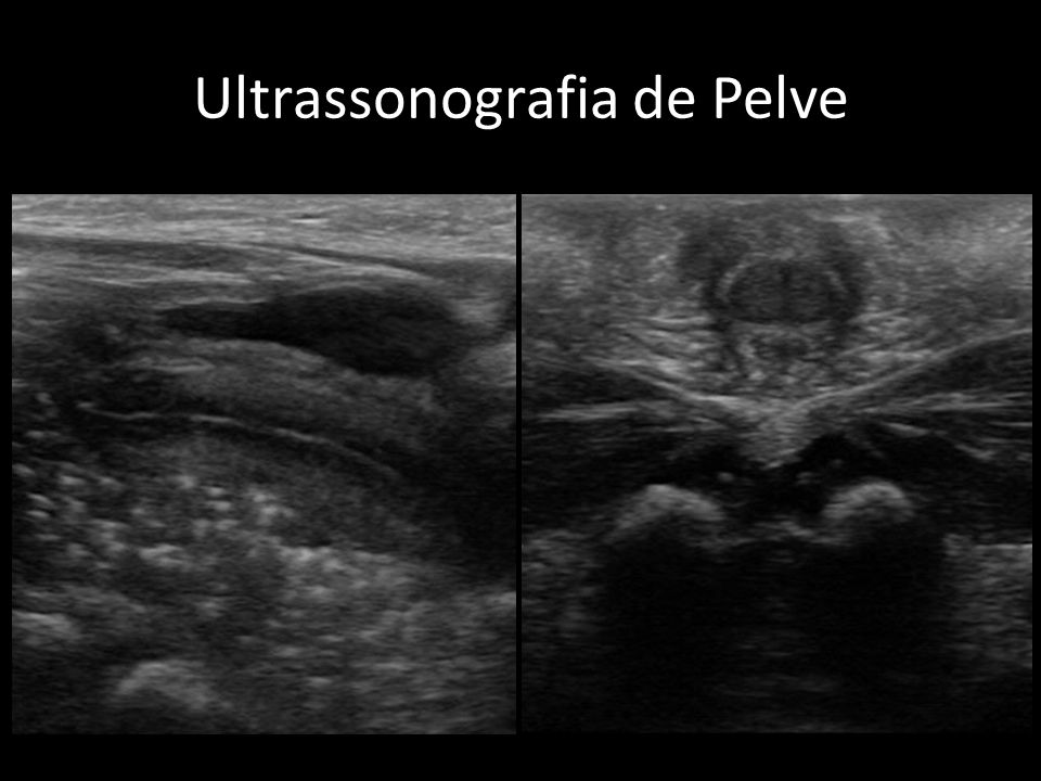 Ultrassonografia de Pelve