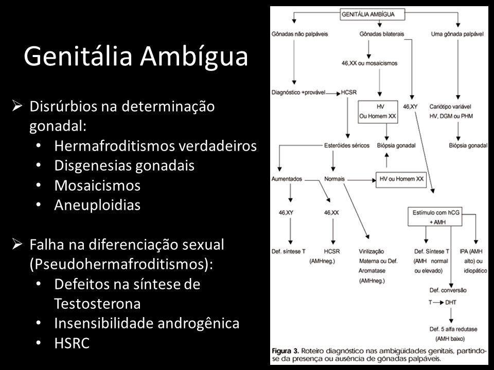 Genitália Ambígua Disrúrbios na determinação gonadal: