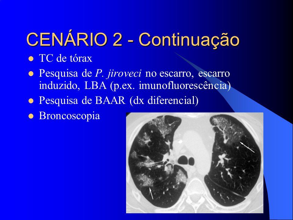 CENÁRIO 2 - Continuação TC de tórax
