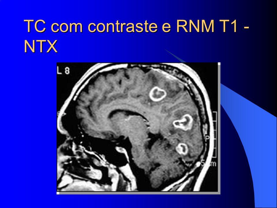 TC com contraste e RNM T1 - NTX