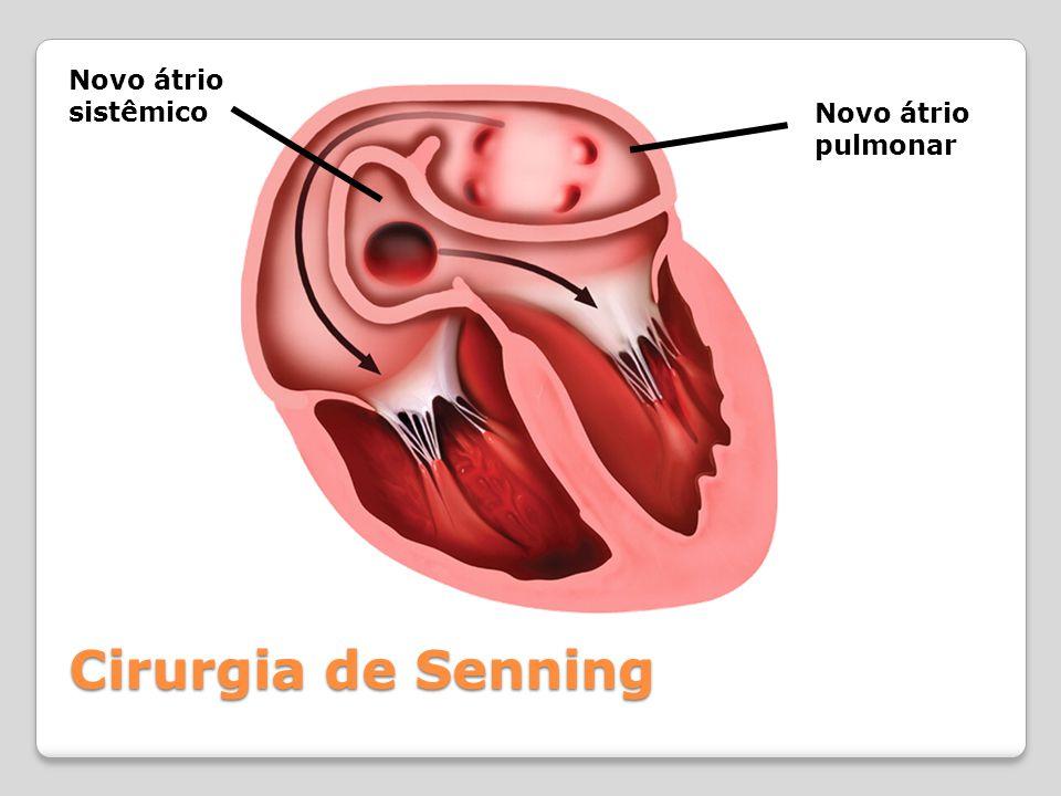 Novo átrio sistêmico Novo átrio pulmonar Cirurgia de Senning