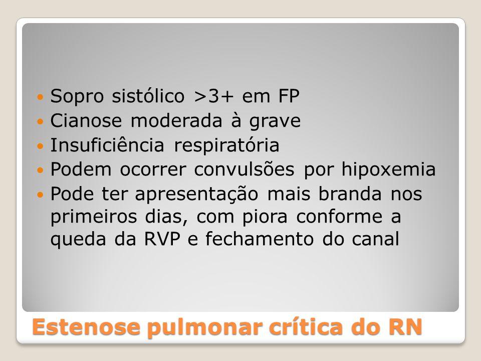 Estenose pulmonar crítica do RN