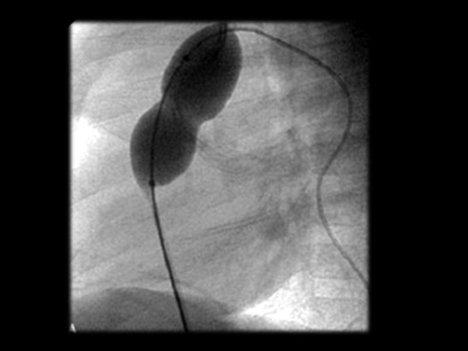 Valvoplastia pulmonar em recém-nascido com estenose pulmonar crítica