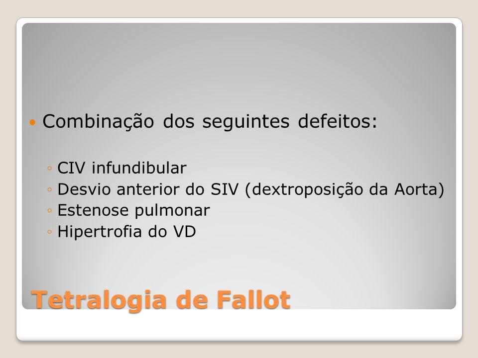 Tetralogia de Fallot Combinação dos seguintes defeitos: